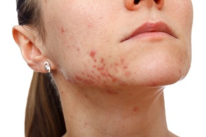 Post image for Home Remedies for Pimples – Super Fast Clear Skin